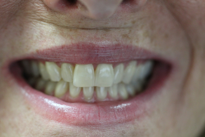 Before Zoom Whitening