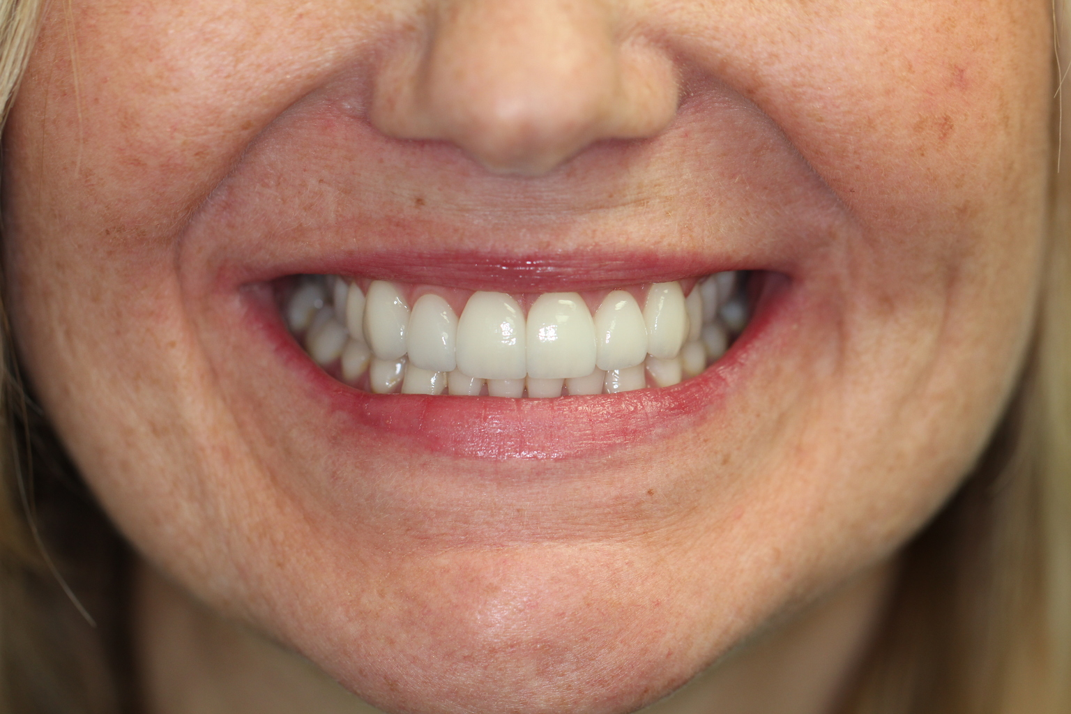 A female that had Veneer procedure completed at Ames Family Dental